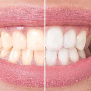 Closeup split image smile before and after teeth whitening