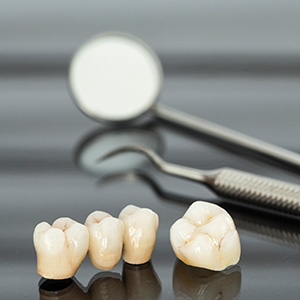 Dental crown and bridge restorations on table