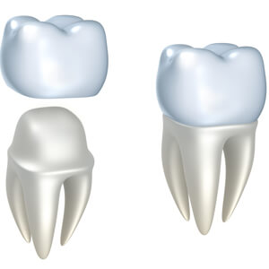 Animation of dental crown placement process