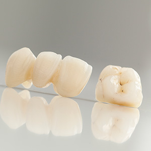 Dental crown and fixed bridge restorations on table