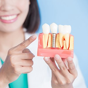 Consultation for the cost of dental implants in Orlando.