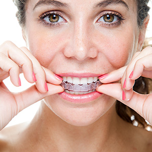 Woman placing Invisalign alignment tray