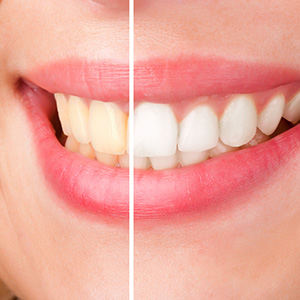 Professional Teeth Whitening Orlando Cosmetic Dentist Sand Lake