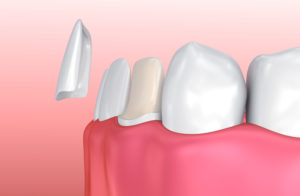 Your cosmetic dentist in Orlando will transform your smile with porcelain veneers.