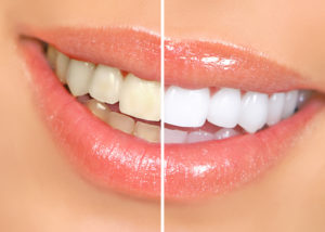 Cosmetic dentistry provides whitening